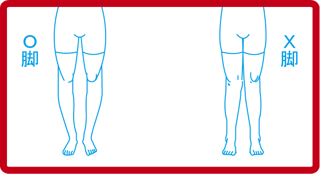 O脚 モデル